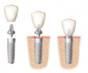 implant pic for dimasoft