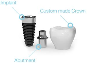 implants with custom made crowns and abutment