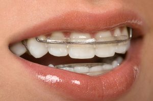 woman with retainer