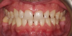 hygienist visit with stain removal after