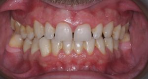 hygienist visit with stain removal before