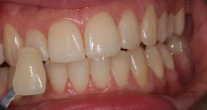 teeth whitening before picture
